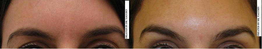 Dermacare Medical - Botox $225 special in New York, NYC ...