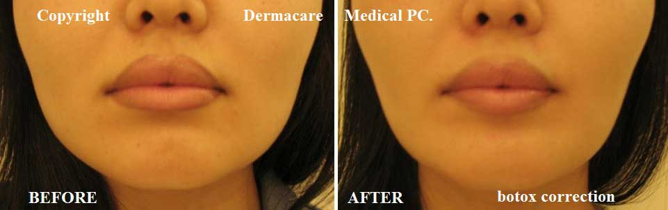 How much it cost for a jaw reduction using Botox? (Photo ...
