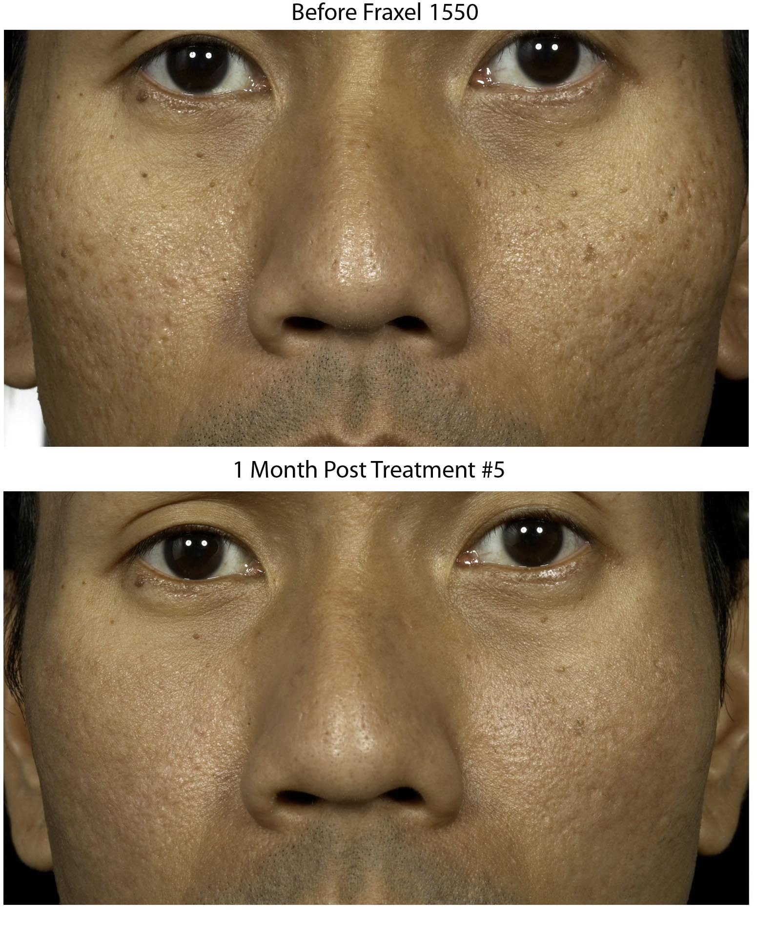 FRAXEL New York laser skin resurfacing