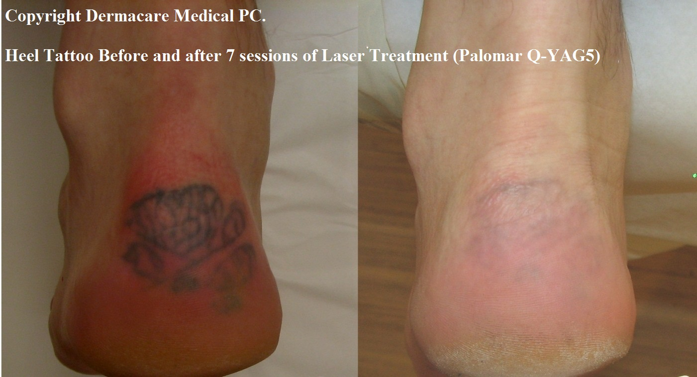 Laser Tattoo Removal New York